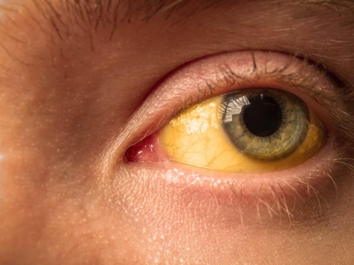 What Causes Yellow Eyes? - How to Diagnose | Access Eye